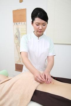 妊娠しやすい体質になるための鍼灸治療